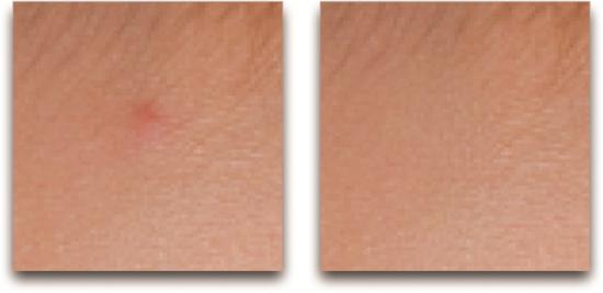 Ch11 Fig 15 Spot Healing 2